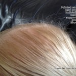Lisa Caddick Isabella Belegenza Growout LASSAS Loose anagen short anagen syndrome hairgrowth results